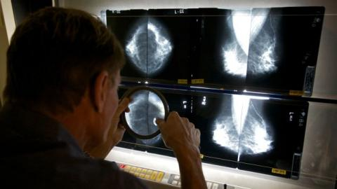 A Major Change to How Doctors Talk About Mammogram Results Is Coming Soon