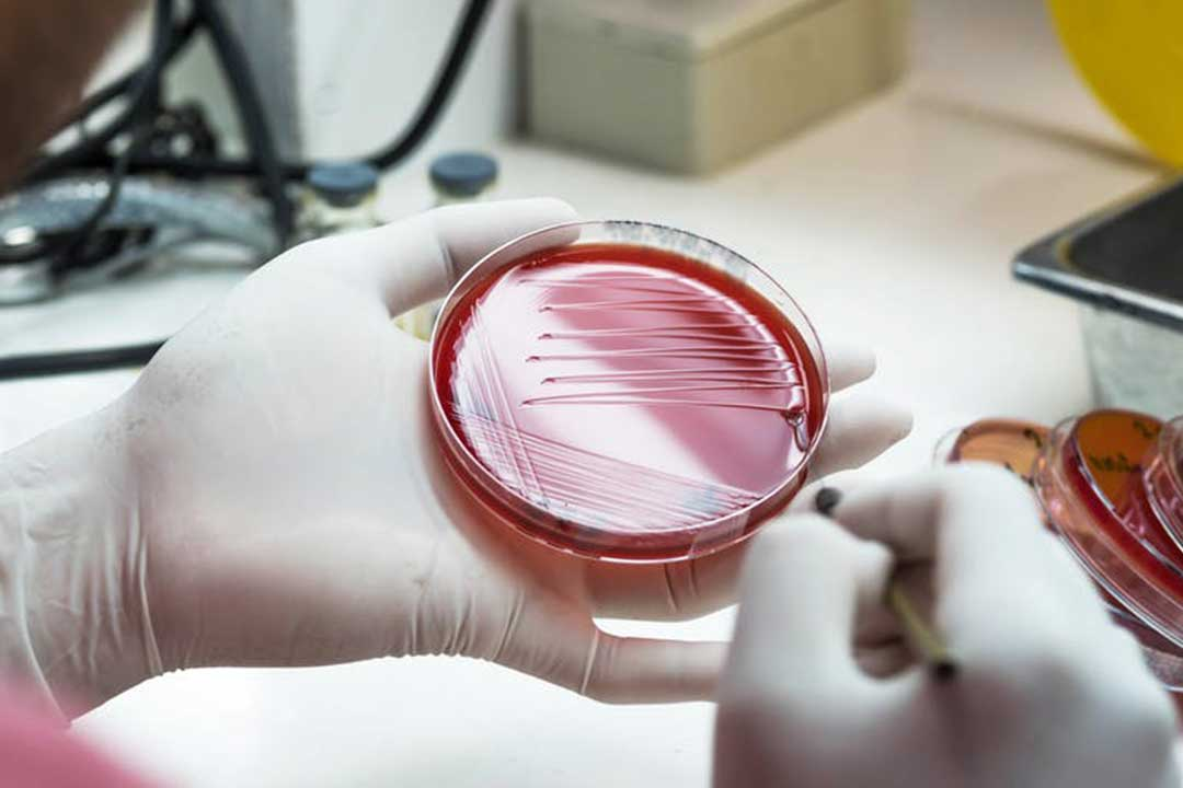 Antibiotic resistance: researchers have directly proven that bacteria can change shape inside humans to avoid antibiotics