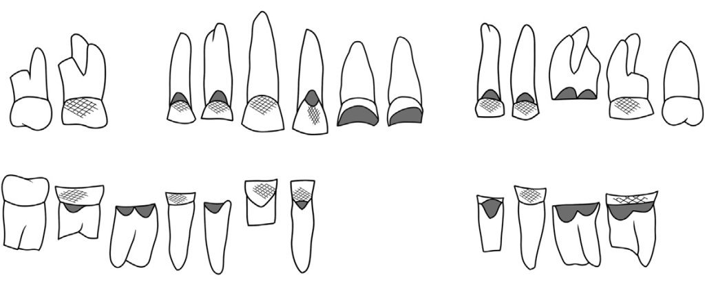 Discovery of an Ancient Egyptian Woman's Teeth Reveals She Had a Surprising Profession